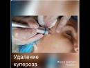 VID_96311209_224022_911.mp4