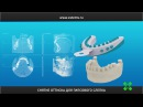 Имплантация по шаблонам. Сеть стоматологий Эстет