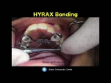 bonding HYRAX expander in orthodontics- maxilla expansion-orthodontic education and courses. Ортодонтия.