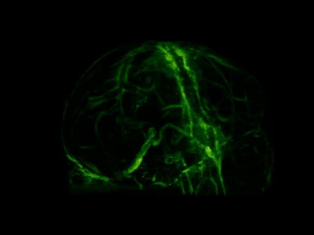 A Brain Drainage System