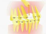 Лечение при ретенции клыка.Пропедевтика ортодонтии.