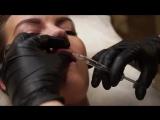 Что категорически нельзя делать после увеличения губ филлерами?