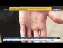 Шокирующие фото : во что превратились руки гребца в Северном Ледовитом океане