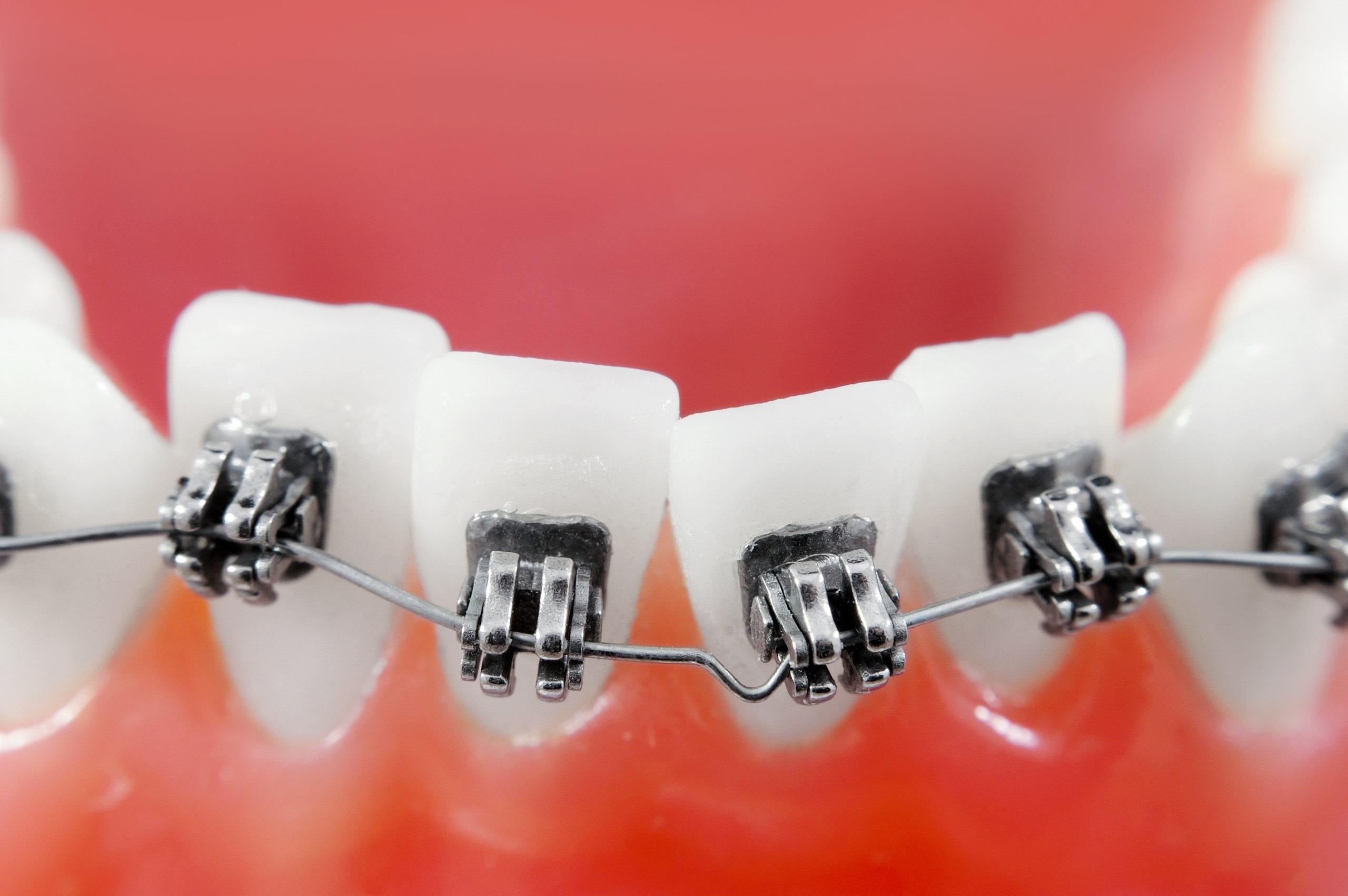 Что такое стоматология?