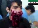 Опасное ранение 15-лет. мальчика Хамзы Бакура в Сирии (360p)