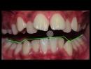 Orthodontic case presentation of Class II division 1, Damon--ortho education extraction-deep bite. Ортодонтия.