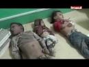 Voici l'histoire des enfants oubliés du Yémen ATTENTION IMAGES CHOQUANTES Nous ne publions pas ces images pour faire du buz