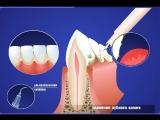 Гигиена и профилактика - Обработка ультра-звуком