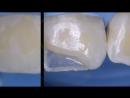 Class IV composite.Эстетическая стоматология.