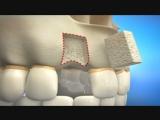 Что делать когда зуба давно нет и необходим имплант?