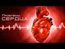 02. Проблемы сердца — «Когда сердцем правит плоть »
