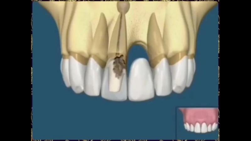 Протез VS Импланты