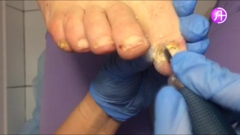 Чистка грибка ногтей в МЦ ЛазерЭстетика