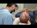 Трансплантация фолликул в зону облысения