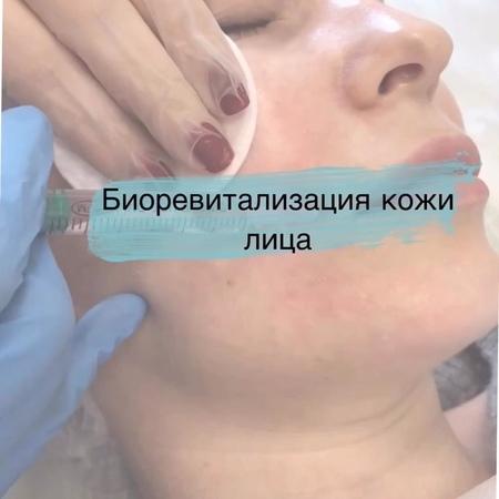 КОСМЕТОЛОГ КУНГУР on Instagram ✨Чтобы наполнить кожу сиянием нужно увлажнить ее изнутри 💦 ⠀ После долгой уральской зимы резервы нашей кожи истощ