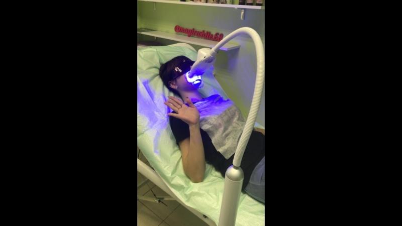 Кислородное отбеливание зубов 💎