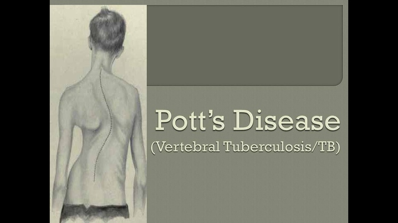 Potts disease treatment and pathology and the real case study