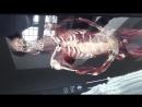 Интерактивный анатомический стол ОНМедУ