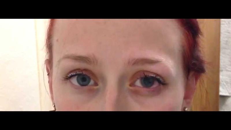 Eye Dilation Drops