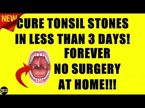 How To Get Rid Of Tonsil Stones Permanently (2018) - FAST Tonsil Stones Treatment!