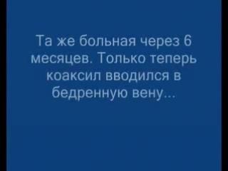 коаксил