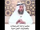 السؤال . حكم إزالة الترهلات بالعمليات الجراحية. . عثمان الخميس