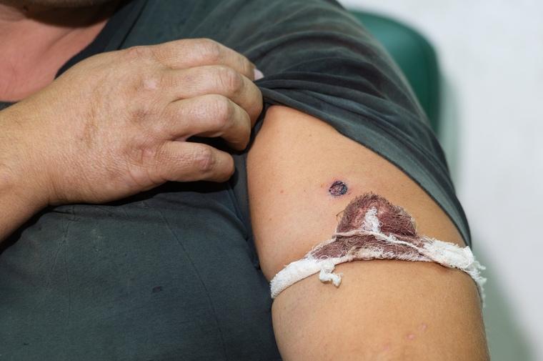 85-летняя женщина поселка Зайцева получила ранение