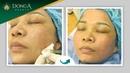 Cách điều trị sẹo rỗ hiệu quả nhất chỉ sau 1 liệu trình