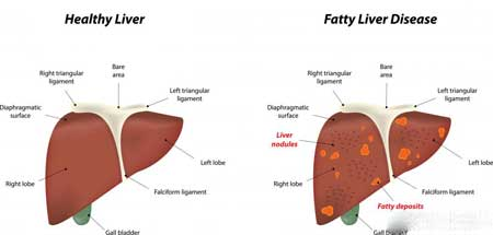 Есть две разновидности жирной печени, которые могут перерасти в гепатомегалию.