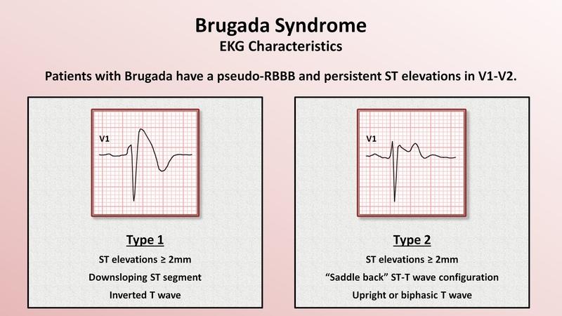 23. Advanced EKGs - Sudden Cardiac Death (Hypertrophic cardiomyopathy, ARVD, Brugada syndrome, and CPVT)