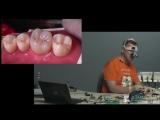 Реставрация разрушенных боковых зубов.