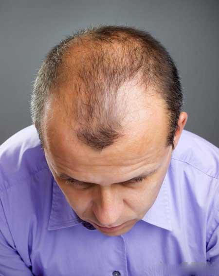 Финастерид показал себя как средство от выпадения волос.
