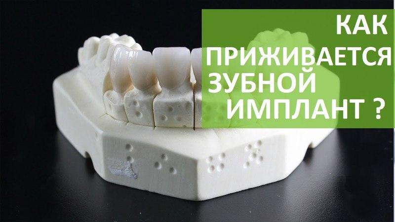 Зубной имплант. 🔧 Может ли зубной имплант не прижиться? ROOTT. 12