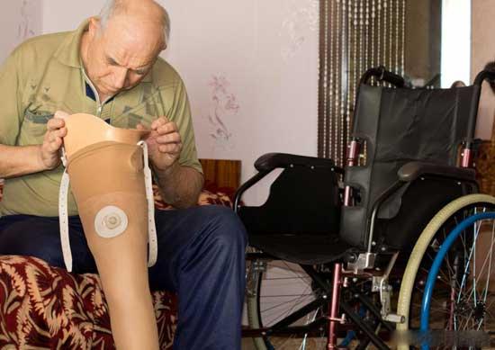 Периферическая невропатия в ногах может привести к потере подвижности или ампутации