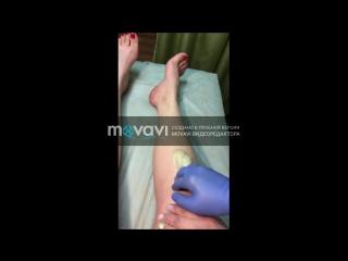 Шугаринг ног