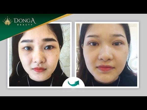 Bấm mí mắt Hàn Quốc Dr Park đẹp tự nhiên - Bảo hành 10 năm