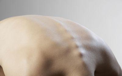Остеохондроз: общие причины боли в растущих костях.