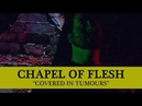 • CHAPEL OF FLESH - Covered In Tumours (OFFICIAL MUSIC VIDEO) Old School Death Metal
