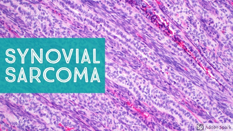 Synovial Sarcoma…Explained by a Soft Tissue Pathologist