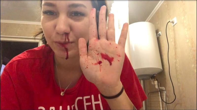 Носовые кровотечения, кто-то сливает меня родителям, ремонт продолжается