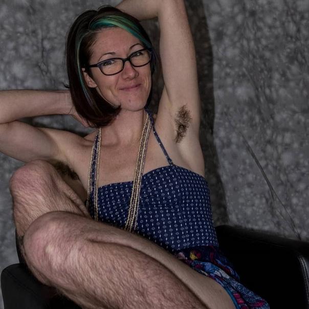 Бодипозитив! Экстремально волосатая блогер полностью отказалась от депиляции Издание The Sun поделилось историей блогера «Леди Бигфут». 32-летняя Дана из Портленда, более двадцати лет страдала
