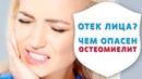 Отек лица, остеомиелит или периостит? Срочно к хирургу-стоматологу | Истории пациентов | Дентал ТВ