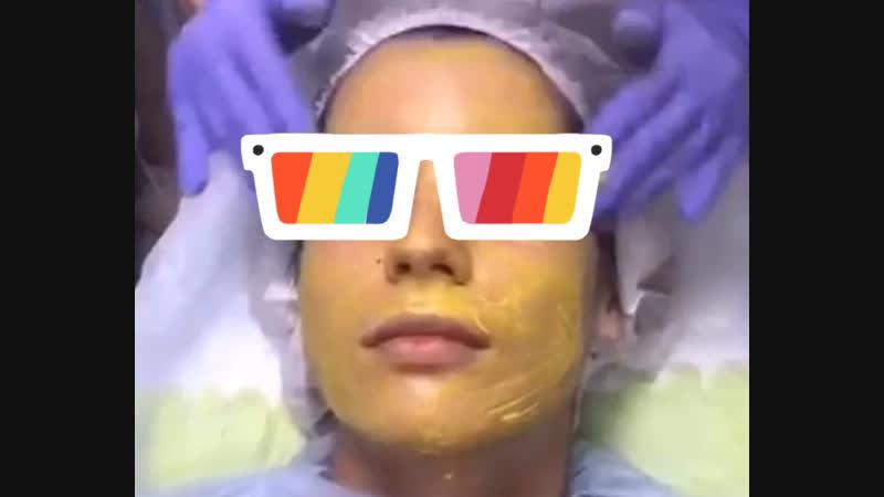 🤩Ретиноевый желтый пилинг🤩