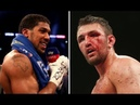 Hughie Fury Calls Out Anthony Joshua Again. Desperate To Fight Or A Big Payday?