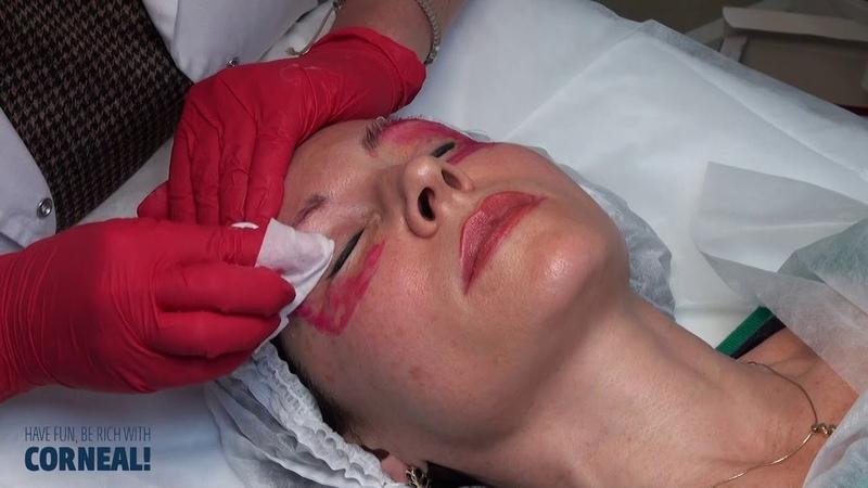 Мастер-класс «Химический пилинг области вокруг глаз (Skinproject®NanoPeel)»