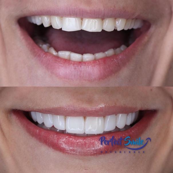 Ликвидация накладок для зубов Perfect Smile