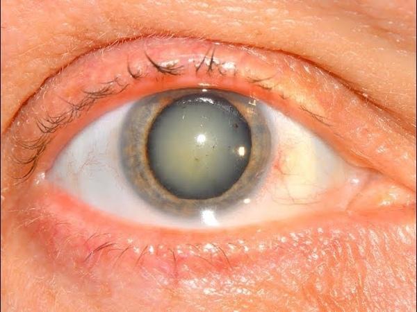 ★ Натуральный рецепт от катаракты очистит глаза и улучшит зрение через 3 месяца!