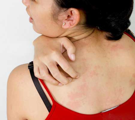 У человека с аллергической реакцией на амоксициллин может развиться сильная сыпь после приема препарата.