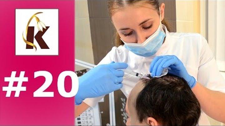 Мезотерапия- от выпадения волос, облысения головы, как избавиться от перхоти, седины, укрепить, уход