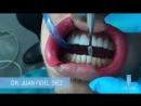 Unilaser - Diseño de Sonrisa paso a paso